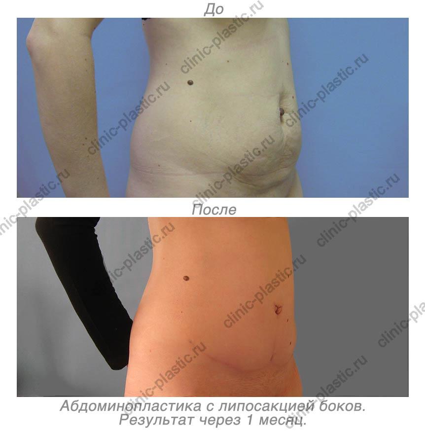 Увеличение груди в Москве  стоимость увеличения груди