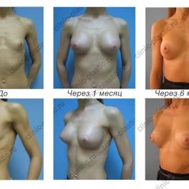 Увеличение груди. Результат через 1 и 6 месяцев.