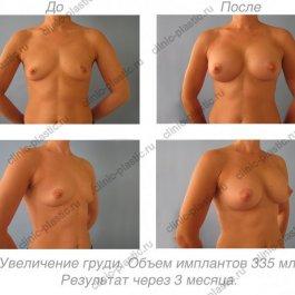 Увеличение груди. Результат через 3 месяцa.