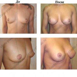 Увеличение груди. Результат через 2 месяца.