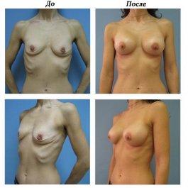 Увеличение груди. Результат через 3 месяца.