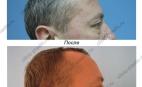Верхняя и нижняя блефаропластика. Результат через 1.5 месяца.