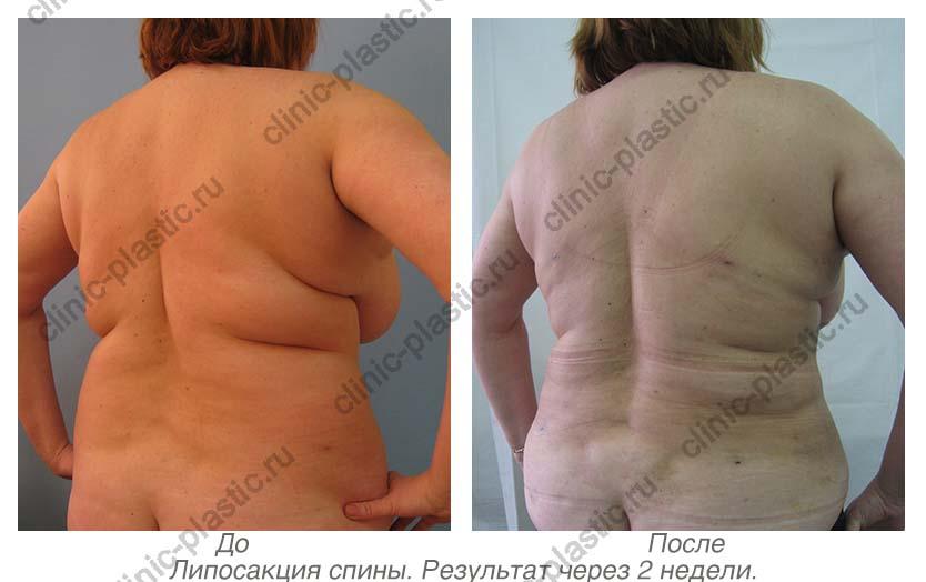 фото до липосакции и после