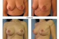 Вертикальная подтяжка груди. Результат через 2 месяца.