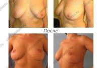 Якорная подтяжка груди. Результат через 1 год.