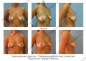 Периареолярная подтяжка груди. Результат через 1 месяц.