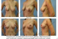 Коррекция ассиметрии молочных желез