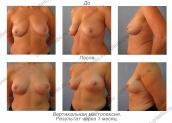Вертикальная подтяжка груди. Результат через 1 месяц.