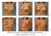 Редукционная мастопексия. Результат через 1 месяц