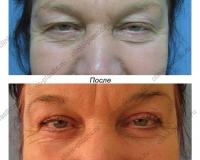 Верхняя и нижняя блефаропластика. Результат через 1 месяц.