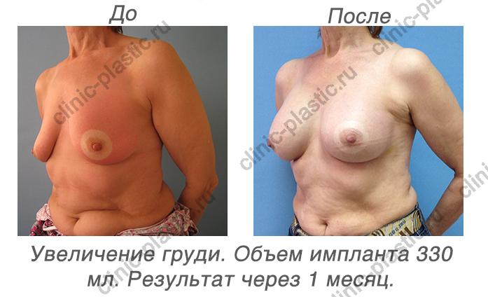 увеличение груди спб