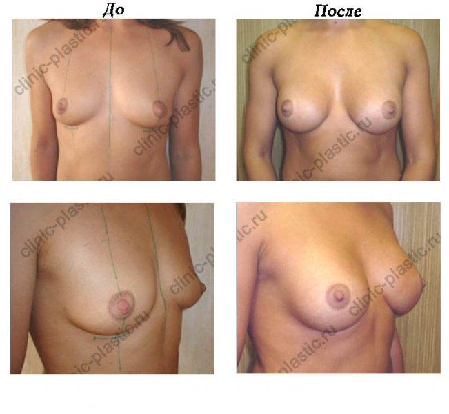 врачи по увеличению груди в челябинске