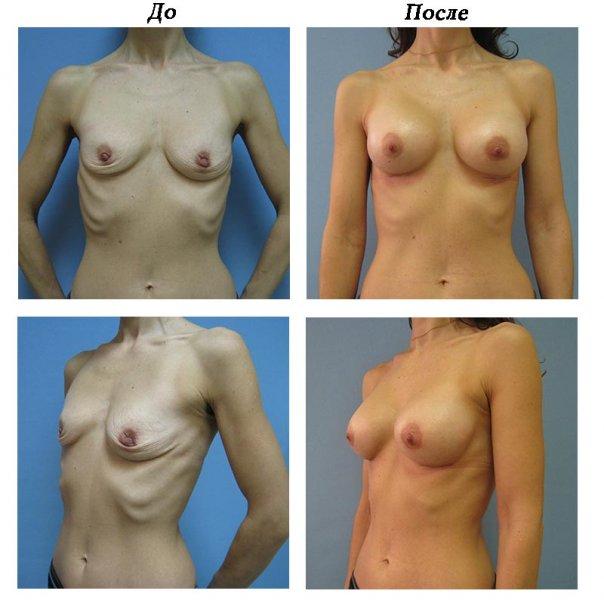 Отзывы об пластики груди