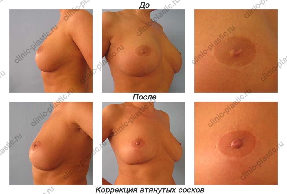 формы женской груди фото