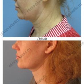 Подтяжка щек и шеи