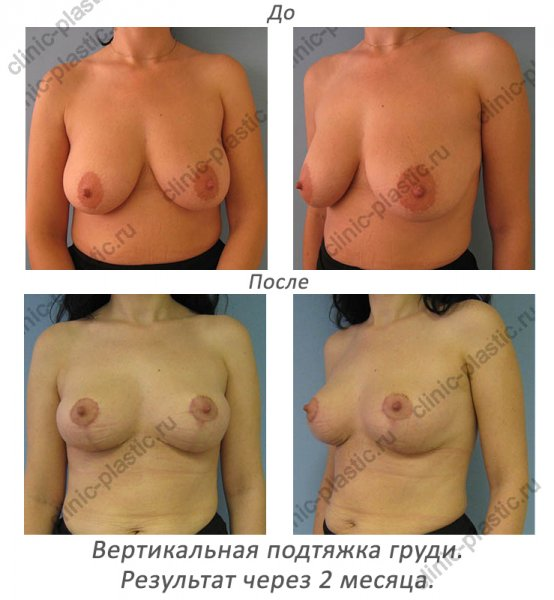 Увеличение груди г.набережные челны