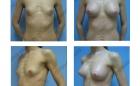 Увеличение груди. Результат через 1 месяц.