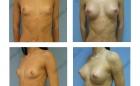 Увеличение груди. Результат через 1.5 месяца.
