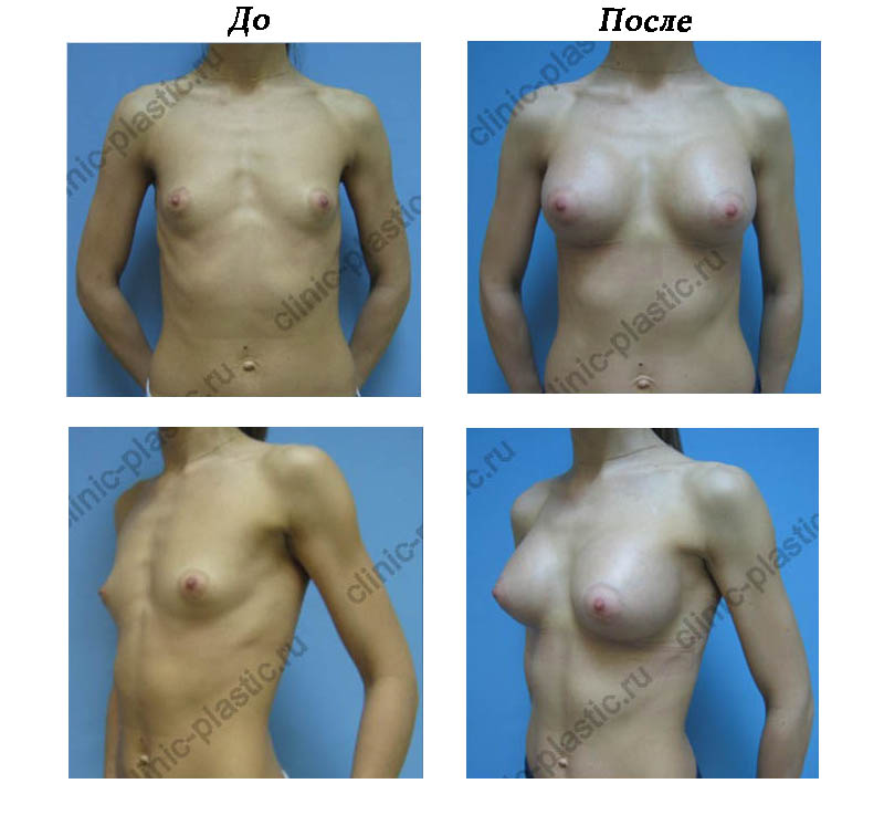 увеличение груди смотреть онлайн