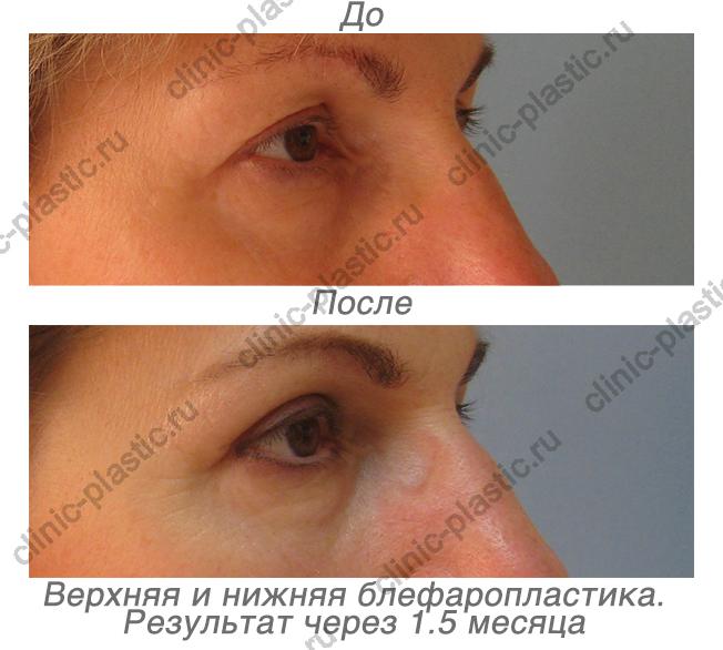Блефаропластика в москве форум